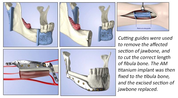 UK hospital completes jaw reconstruction using bone grafts with metal 3D printing
