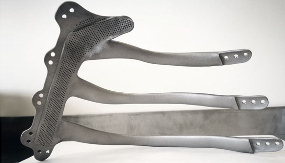 Hospital reconstructs patient's chest using titanium 3D printing