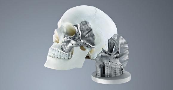 Russia's Conmet employs Trumpf technology for the production of custom craniomaxillofacial implants