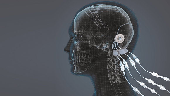 Metal Additive Manufacturing enables device with potential to cure Parkinson's disease