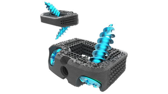 Nexxt Spine's latest additively manufactured spinal implant receives FDA clearance