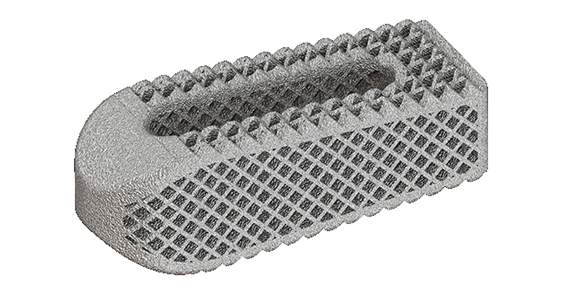 Osseus introduces additively manufactured titanium transforaminal lumbar interbody fusion device