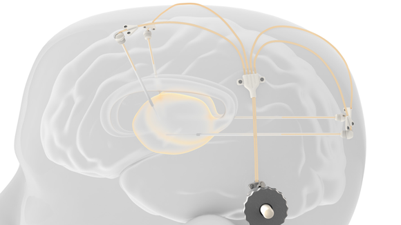 Clinical trial of Renishaw's Parkinson's drug delivery device nears completion